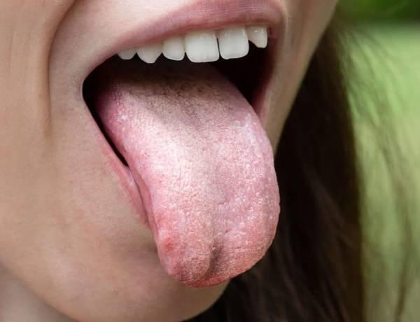Bağırsakta Candida Mantarı Belirtileri Nelerdir? Bağırsakta Candida Mantarı Bitkisel Tedavisi Nedir?
