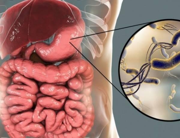 Helikobakter Pilori Nedir, Belirtileri Nelerdir? Bitkisel Tedavisi Nasıl Yapılır?