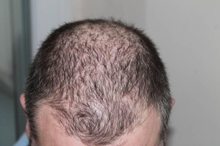Saç Dökülmesi ve Doğal Tedavisi