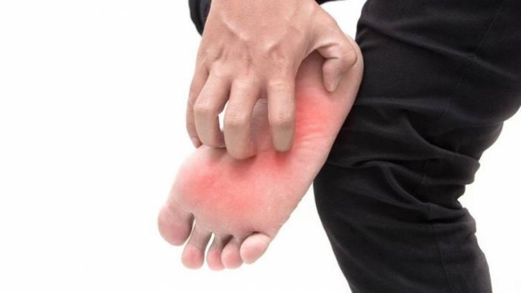 Ayak Altı Yanması Neden Olur? Ayak Altı Yanmasının Bitkisel ve Doğal Tedavisi Nasıl Yapılır?