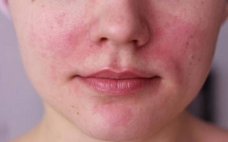 Roza Hastalığının Bitkisel Tedavisi Nedir?
